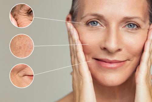 Microneedling Schönheitsbehandlung Horgen